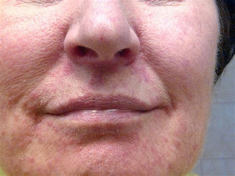 10 Best images about Perioral dermatitis on Pinterest